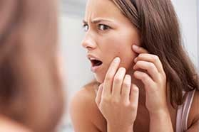 Acne Treatment in Portsmouth, NH