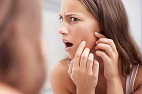 Acne Treatment in Alexandria, VA