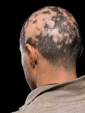 Alopecia Treatment in Pasco County, FL