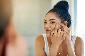 Cystic Acne Treatment Encino, CA