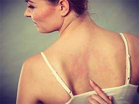 Eczema Treatment The Woodlands, TX