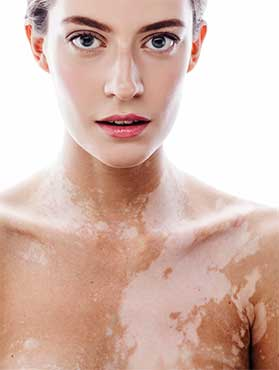Vitiligo Treatment in Hurst, TX